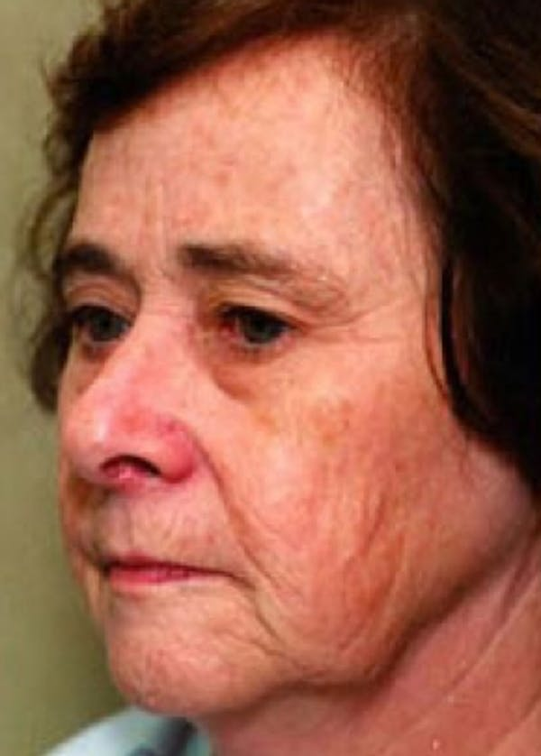 Laser Wrinkle Removal Gallery - Patient 5883776 - Image 1