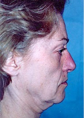 Facelift and Mini Facelift Gallery - Patient 5883778 - Image 1