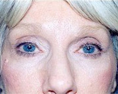 Eyelid Surgery Browlift Gallery - Patient 5883777 - Image 2