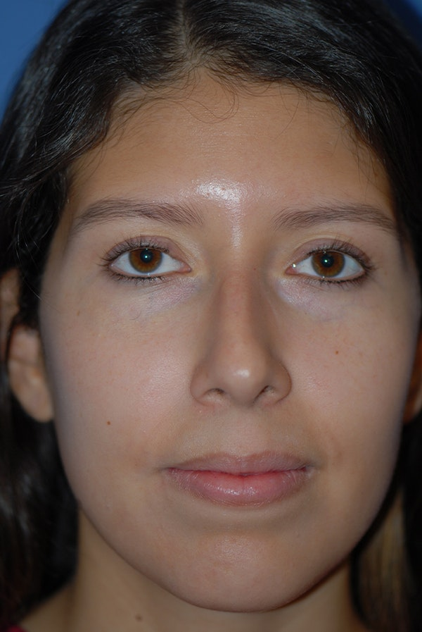 Rhinoplasty Gallery - Patient 5883787 - Image 1