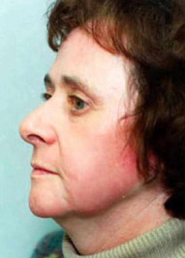 Laser Wrinkle Removal Gallery - Patient 5883776 - Image 2
