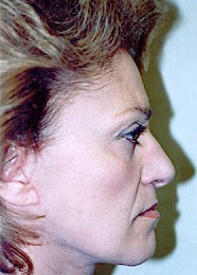 Facelift and Mini Facelift Gallery - Patient 5883778 - Image 2