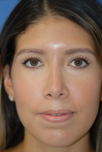 Rhinoplasty Gallery - Patient 5883787 - Image 2