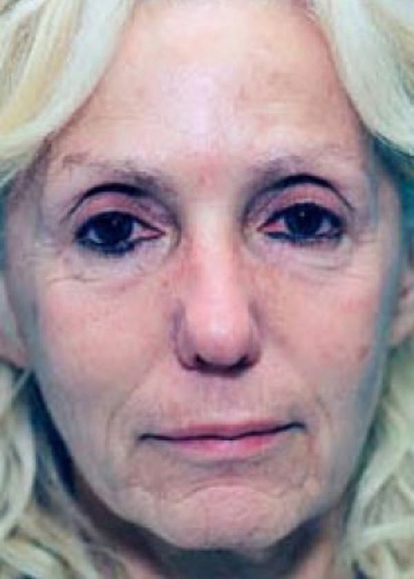 Laser Wrinkle Removal Gallery - Patient 5883781 - Image 1