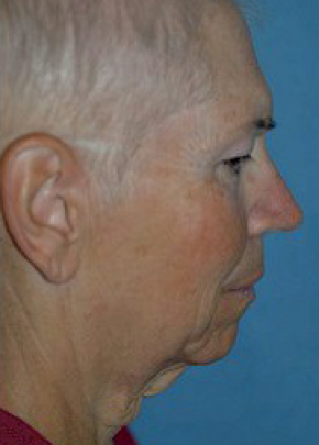 Facelift and Mini Facelift Gallery - Patient 5883782 - Image 1