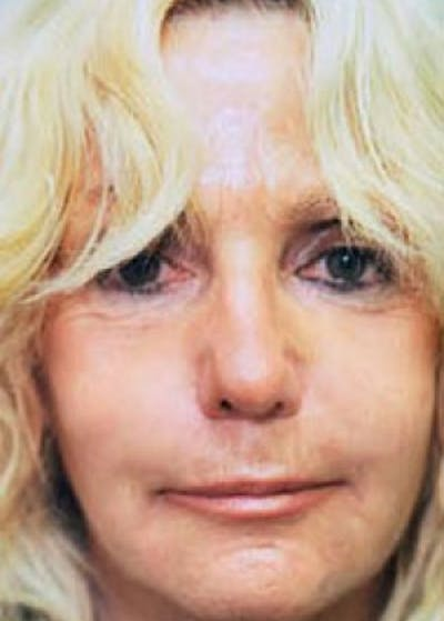 Laser Wrinkle Removal Gallery - Patient 5883781 - Image 6