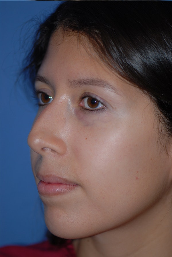 Rhinoplasty Gallery - Patient 5883787 - Image 3