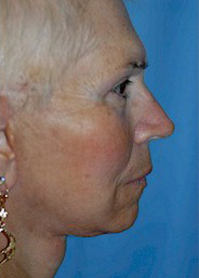 Facelift and Mini Facelift Gallery - Patient 5883782 - Image 2