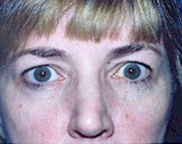 Eyelid Surgery Browlift Gallery - Patient 5883784 - Image 1