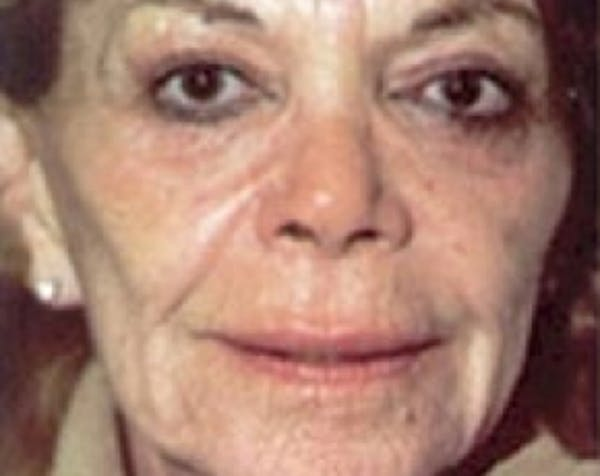 Laser Wrinkle Removal Gallery - Patient 5883783 - Image 1