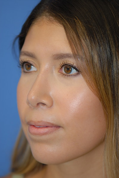 Rhinoplasty Gallery - Patient 5883787 - Image 4