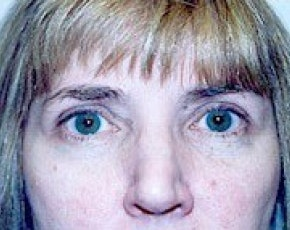 Eyelid Surgery Browlift Gallery - Patient 5883784 - Image 2
