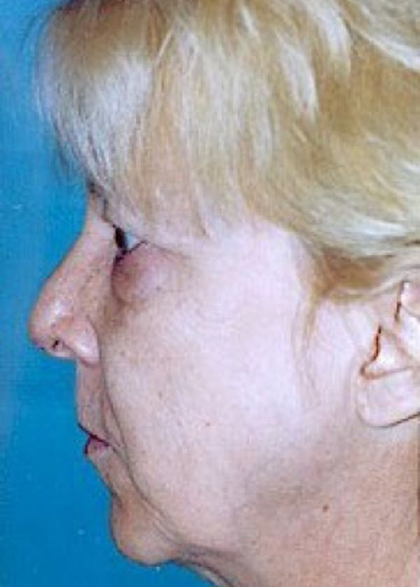 Facelift and Mini Facelift Gallery - Patient 5883785 - Image 1