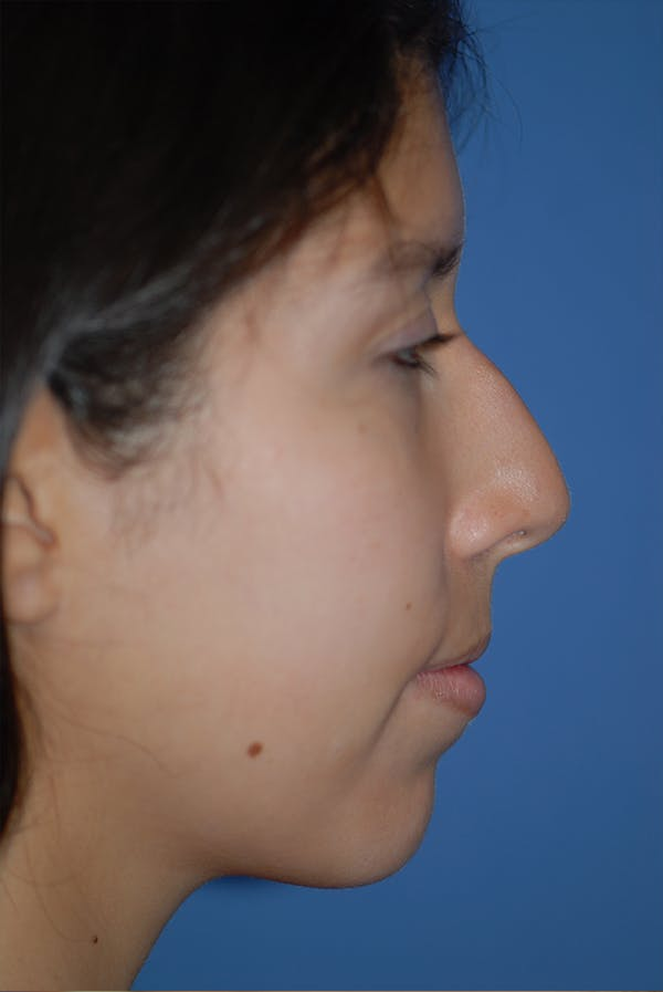 Rhinoplasty Gallery - Patient 5883787 - Image 5