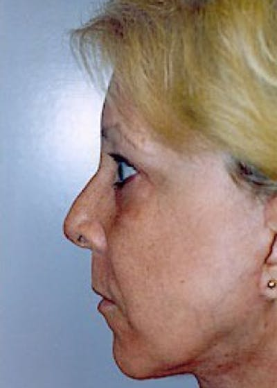 Facelift and Mini Facelift Gallery - Patient 5883785 - Image 14