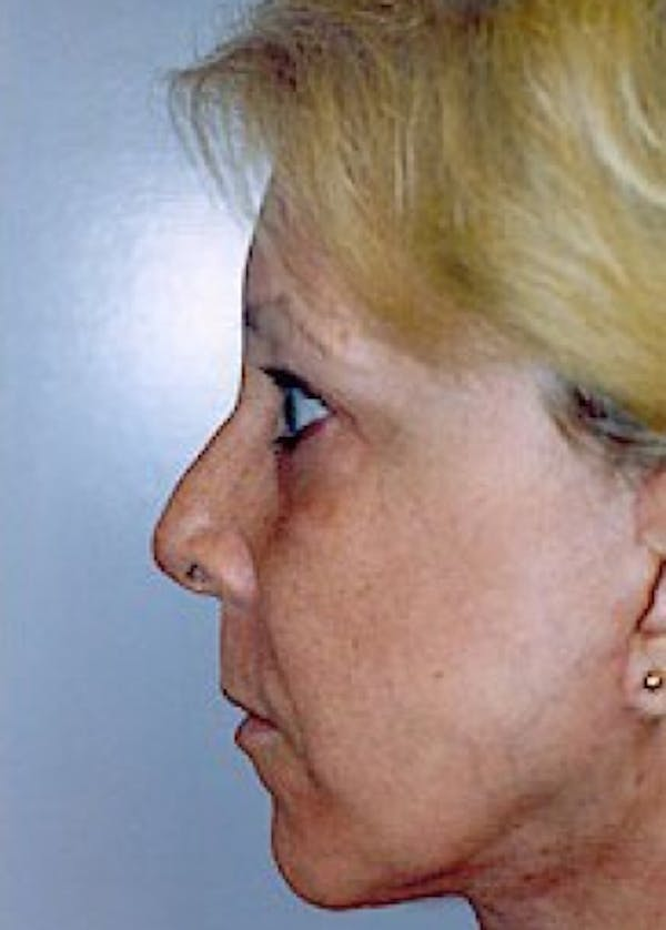 Facelift and Mini Facelift Gallery - Patient 5883785 - Image 2