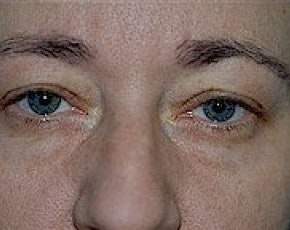 Eyelid Surgery Browlift Gallery - Patient 5883786 - Image 1