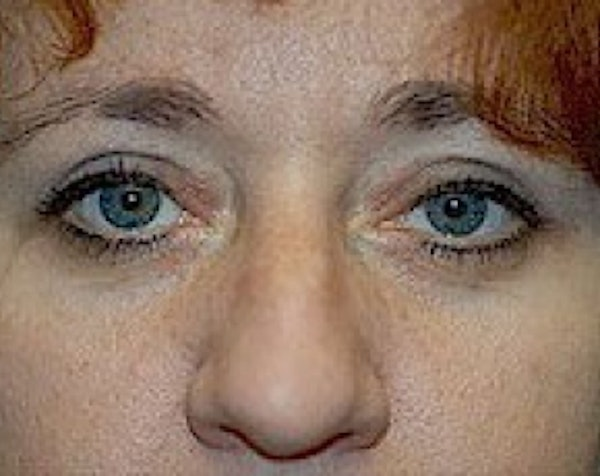 Eyelid Surgery Browlift Gallery - Patient 5883786 - Image 2