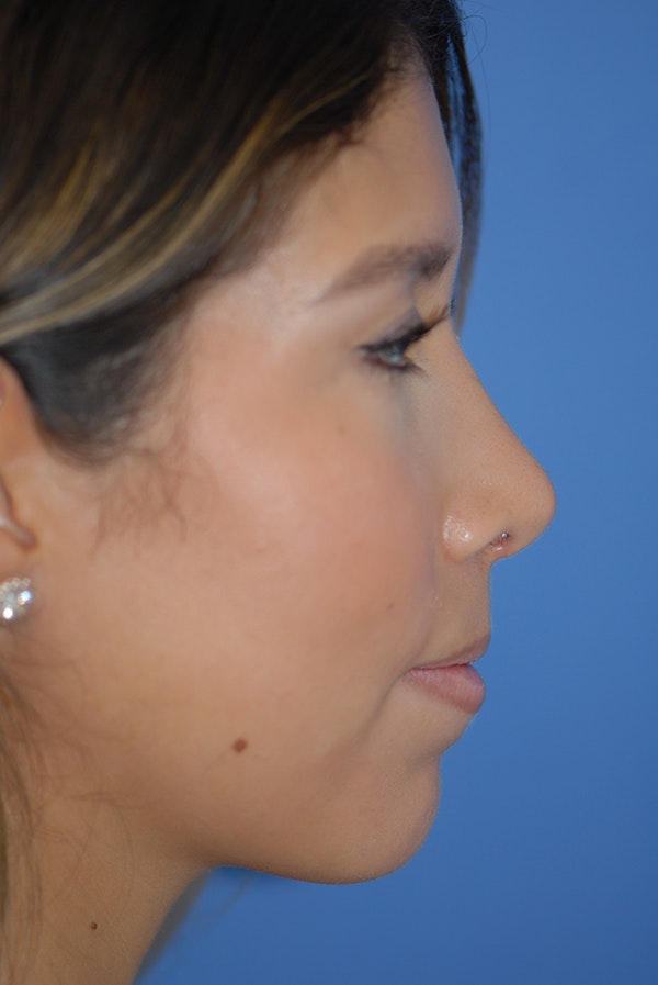 Rhinoplasty Gallery - Patient 5883787 - Image 6