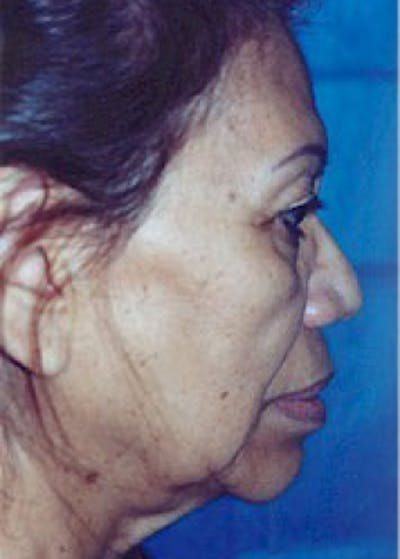 Facelift and Mini Facelift Gallery - Patient 5883791 - Image 1