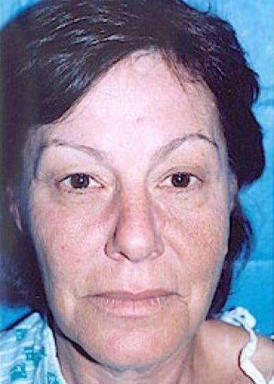 Eyelid Surgery Browlift Gallery - Patient 5883788 - Image 1