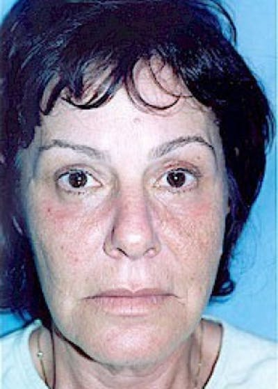 Eyelid Surgery Browlift Gallery - Patient 5883788 - Image 2