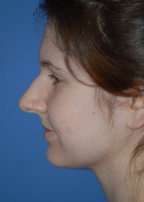 Rhinoplasty Gallery - Patient 5883790 - Image 1