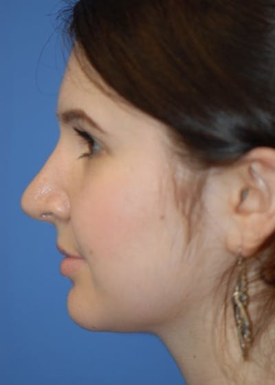 Rhinoplasty Gallery - Patient 5883790 - Image 10