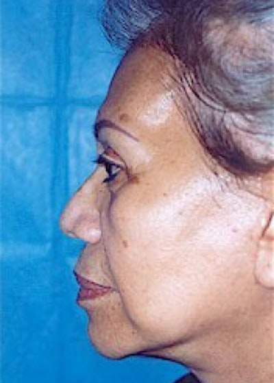 Facelift and Mini Facelift Gallery - Patient 5883791 - Image 4