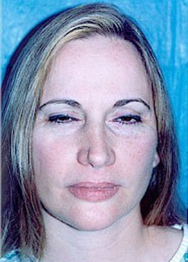 Eyelid Surgery Browlift Gallery - Patient 5883792 - Image 1