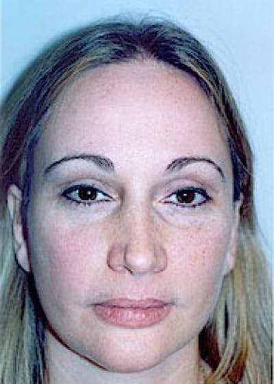 Eyelid Surgery Browlift Gallery - Patient 5883792 - Image 2