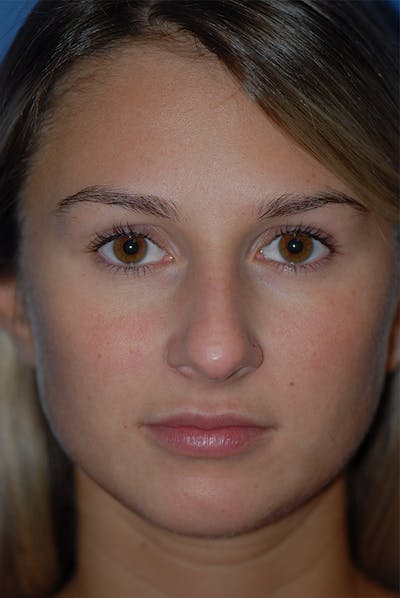 Rhinoplasty Gallery - Patient 5883802 - Image 1