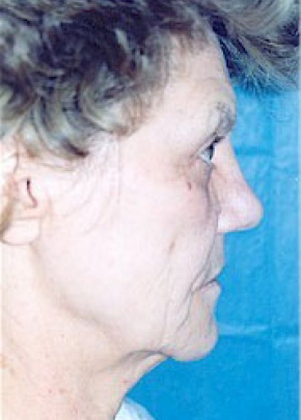 Facelift and Mini Facelift Gallery - Patient 5883796 - Image 1