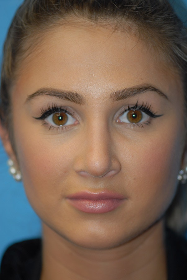 Rhinoplasty Gallery - Patient 5883802 - Image 2