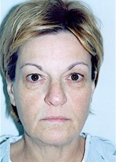 Eyelid Surgery Browlift Gallery - Patient 5883797 - Image 1