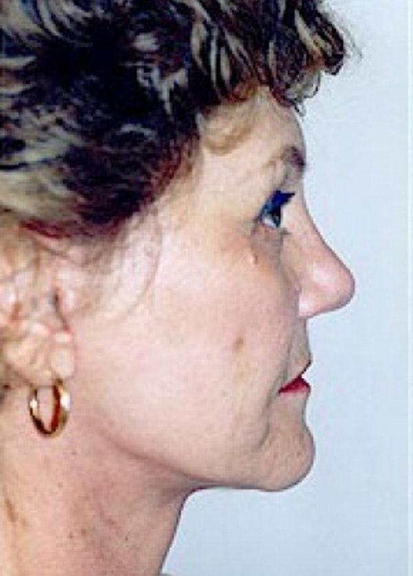 Facelift and Mini Facelift Gallery - Patient 5883796 - Image 2