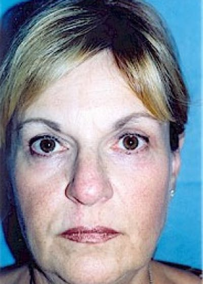 Eyelid Surgery Browlift Gallery - Patient 5883797 - Image 2