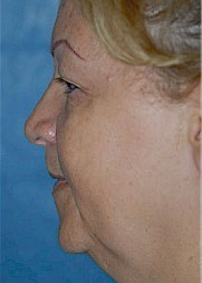 Facelift and Mini Facelift Gallery - Patient 5883805 - Image 1
