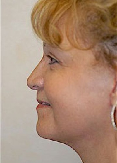 Facelift and Mini Facelift Gallery - Patient 5883805 - Image 2