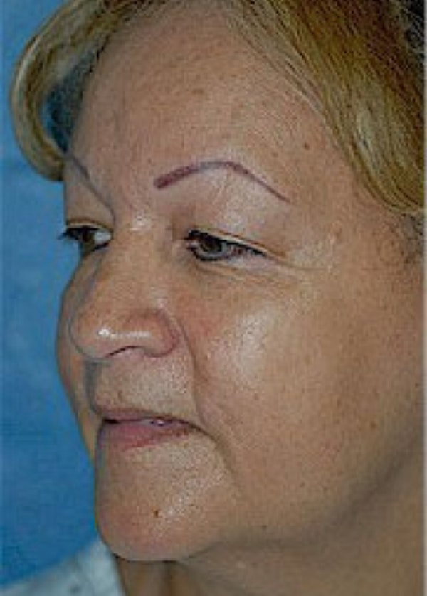 Facelift and Mini Facelift Gallery - Patient 5883805 - Image 3