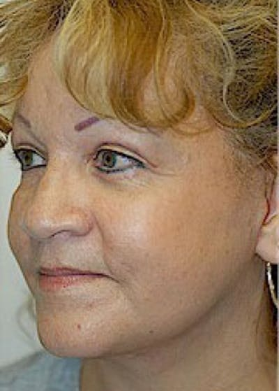 Facelift and Mini Facelift Gallery - Patient 5883805 - Image 4