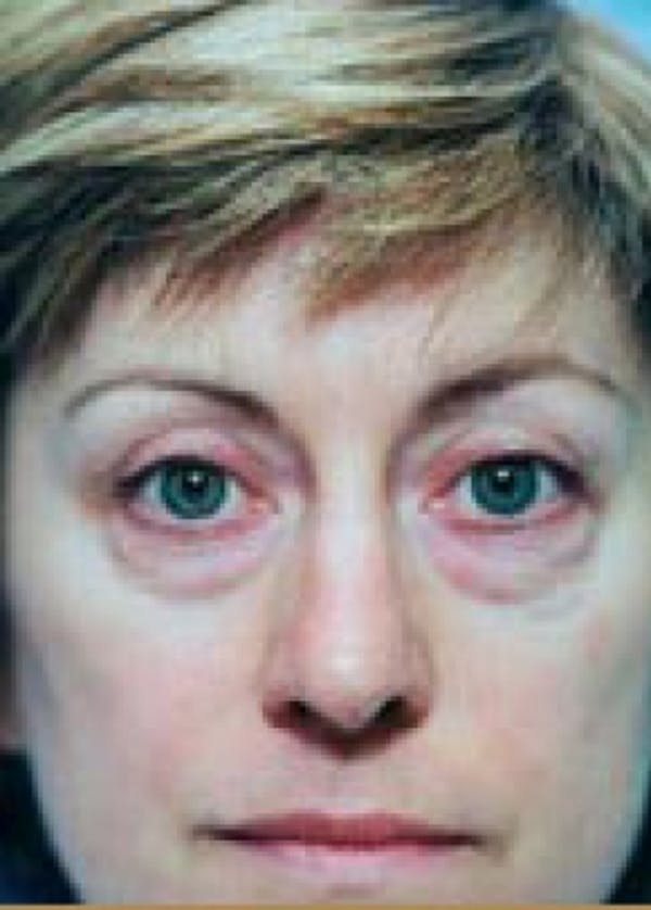 Eyelid Surgery Browlift Gallery - Patient 5883806 - Image 1