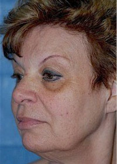 Facelift and Mini Facelift Gallery - Patient 5883808 - Image 1