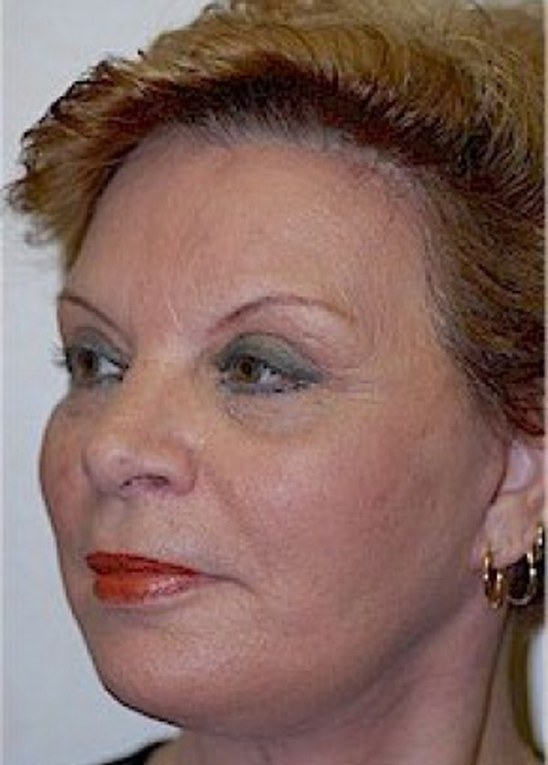 Facelift and Mini Facelift Gallery - Patient 5883808 - Image 2