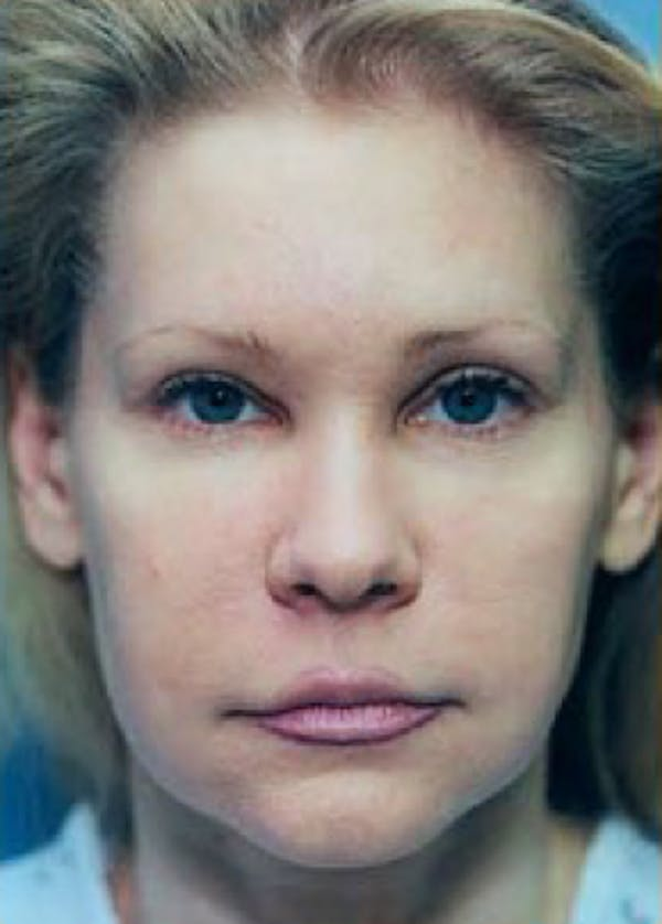 Eyelid Surgery Browlift Gallery - Patient 5883811 - Image 1