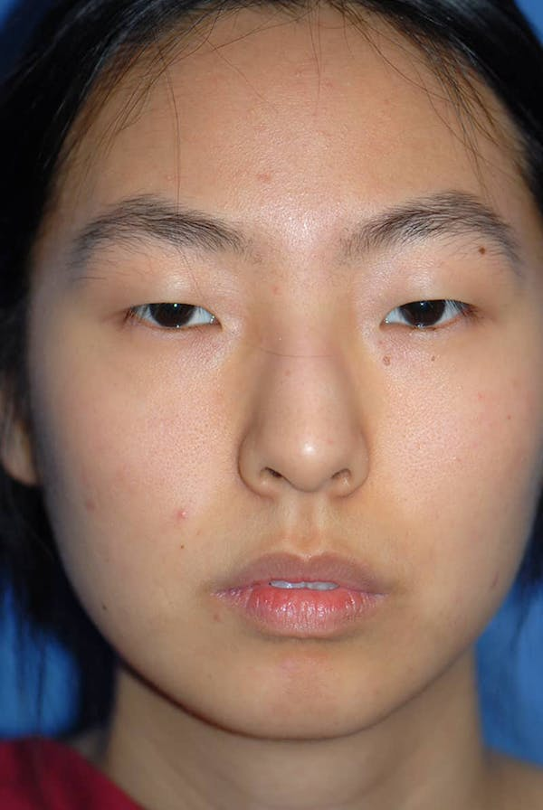 Rhinoplasty Gallery - Patient 5883817 - Image 1