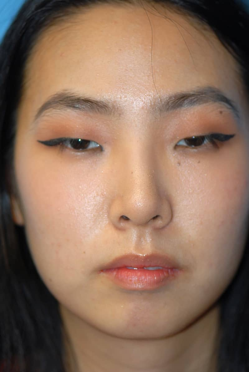 Rhinoplasty Gallery - Patient 5883817 - Image 2