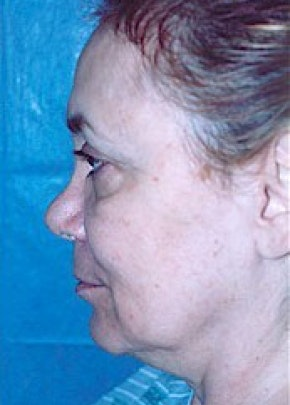 Facelift and Mini Facelift Gallery - Patient 5883814 - Image 1