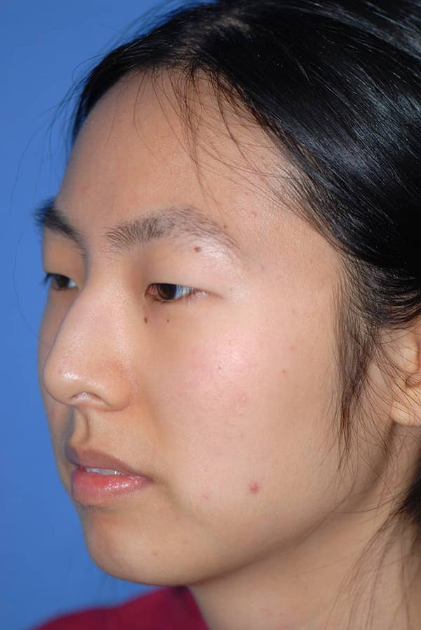 Rhinoplasty Gallery - Patient 5883817 - Image 3