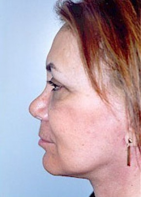 Facelift and Mini Facelift Gallery - Patient 5883814 - Image 2